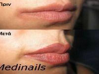 Medinails Ποδολογικό κέντρο, Health And Beauty - 27